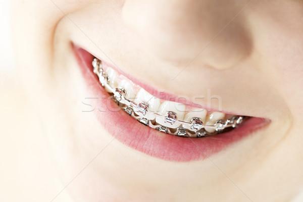 Smile with braces Stock photo © elenaphoto
