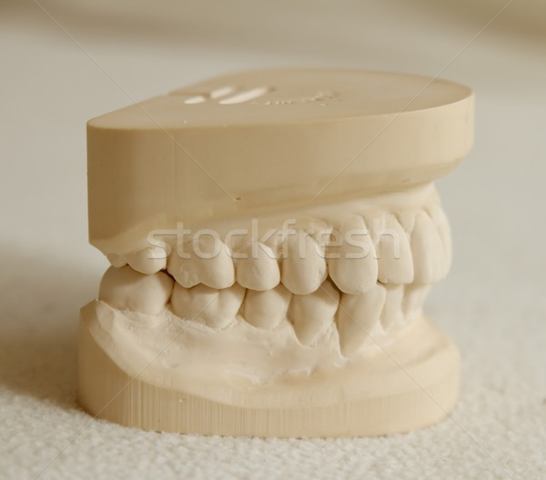 Dental gypsum model mould of teeth Stock photo © Elenarts