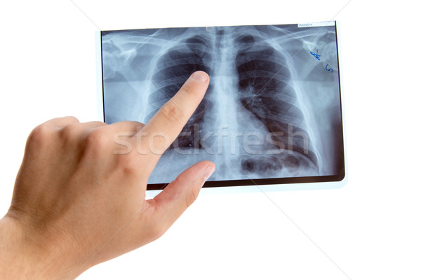 Male hand pointing on lung radiography  Stock photo © Elisanth