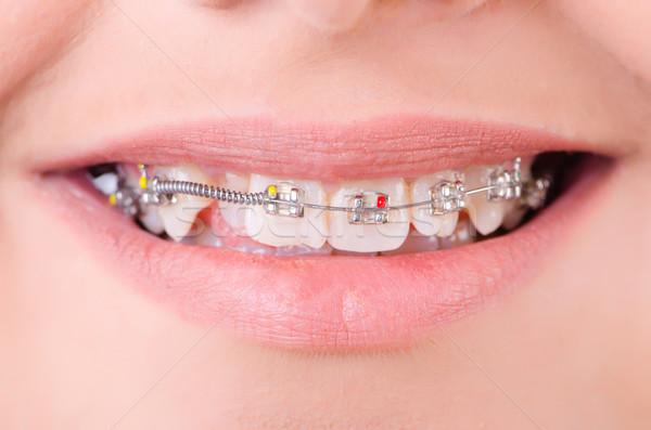 Mond bretels medische gelukkig metaal tanden Stockfoto © Elnur