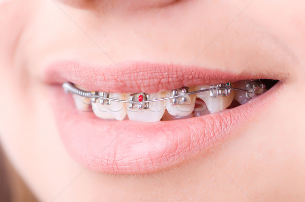 Mouth with brackets braces in medical concept Stock photo © Elnur