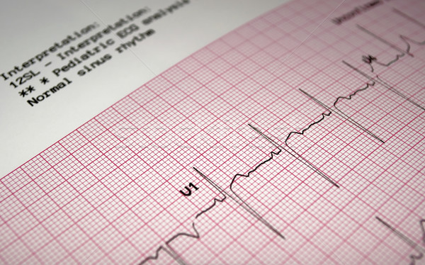 Electrocardiograma corazón análisis gráfico papel Foto stock © FER737NG