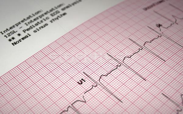Elektrocardiogram hart analyse grafiek papier Stockfoto © FER737NG