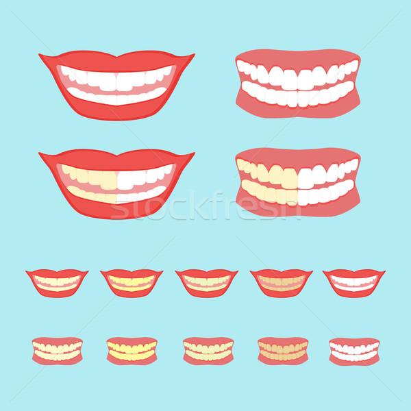 ホワイトニング 歯 孤立した 青 歯科 カード ストックフォト © Fosin