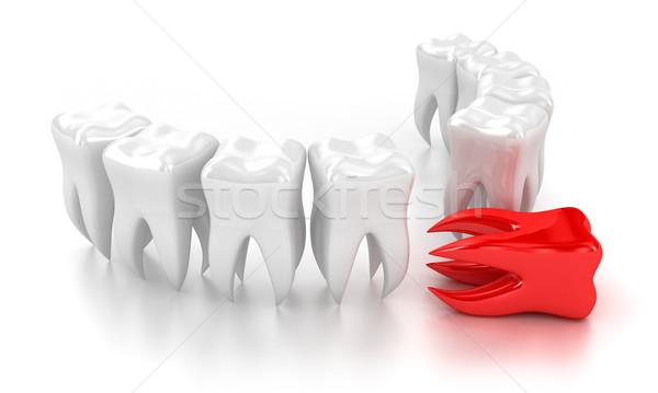 зубов иллюстрация Белые зубы один красный Сток-фото © FotoVika