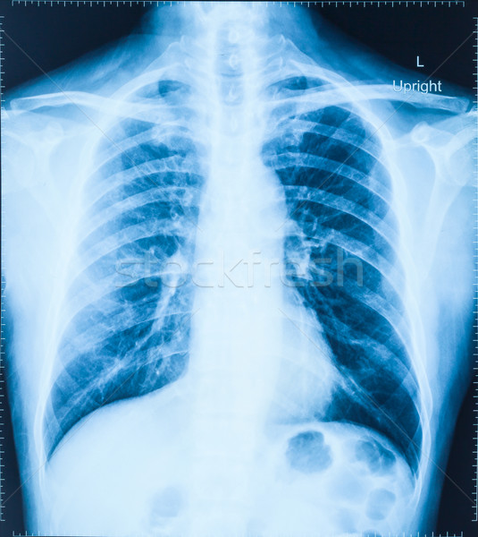 X-Ray Image Of Human Chest for a medical diagnosis Stock photo © FrameAngel