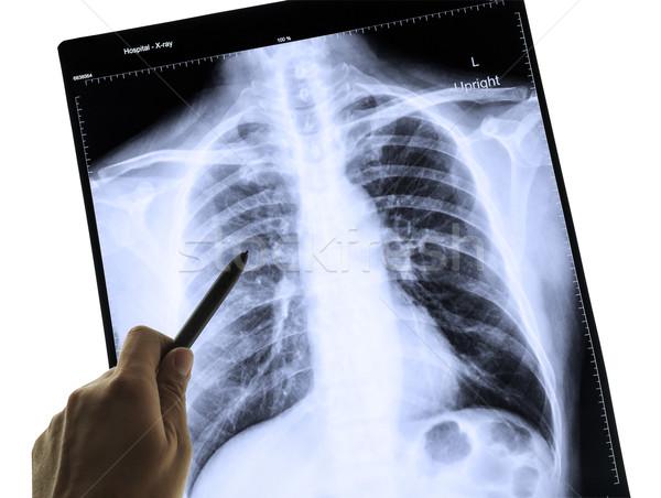 Röntgen kép emberi mellkas orvosi diagnózis Stock fotó © FrameAngel