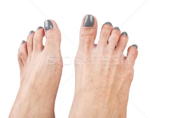 female feet with eczema infect, isolated on white background, cl Stock photo © FrameAngel