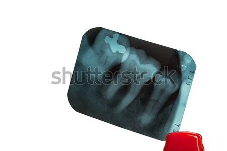 tooth and overlapping teeth in X-ray film showing and tweezer on Stock photo © FrameAngel