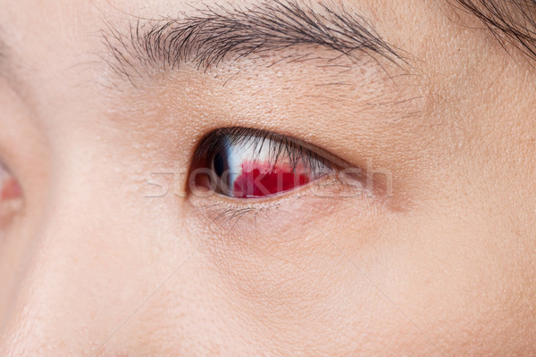 Eye injury or infected for healthy concept, macro closeup  Stock photo © FrameAngel