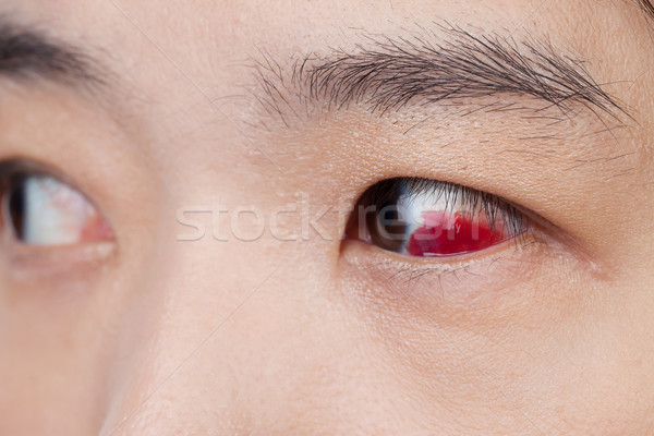 Olho ferimento infectado saudável macro Foto stock © FrameAngel