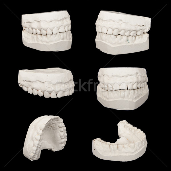 Set of Dental casting gypsum models plaster cast stomatologic hu Stock photo © frescomovie