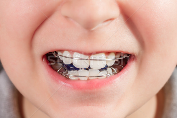 Child with orthodontic appliance close-up Stock photo © g215
