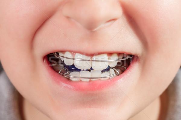 Kind orthodontische apparaat medische gezondheid Stockfoto © g215