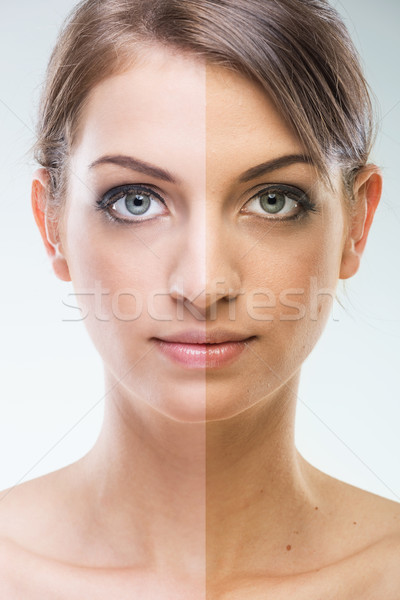 Stock photo: Before After - Plastic surgery face - before and after tanning