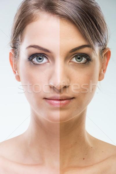 Plasztikai sebészet arc napozás nő szépség ajkak Stock fotó © Geribody