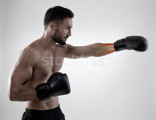 Sport blessure boxeur main inflammation médecine Photo stock © goir