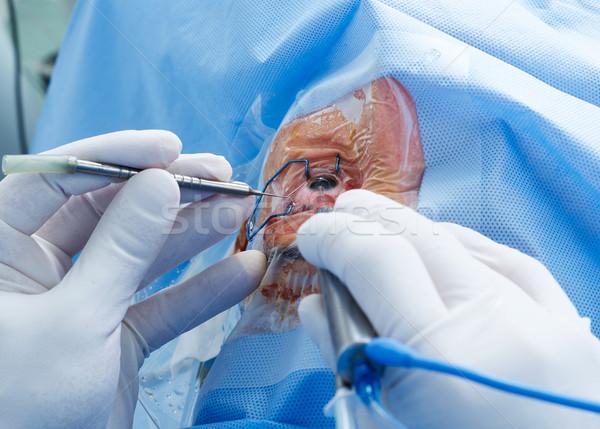 Oog chirurgie vrouw Open ziekenhuis Stockfoto © goir