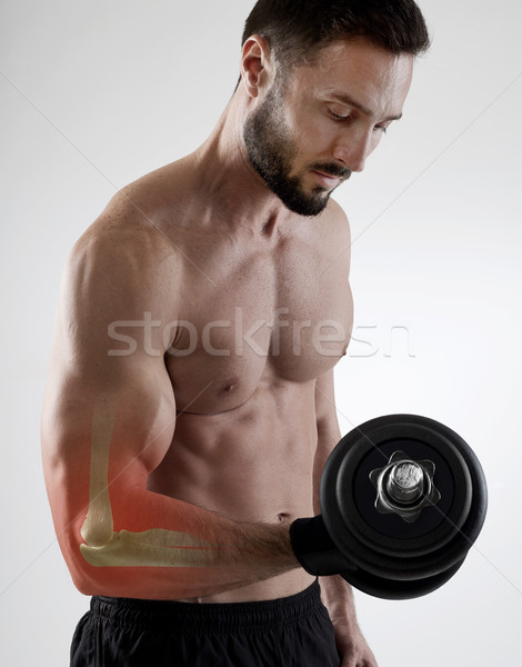 Weightlifting injury Stock photo © goir