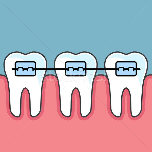 Teeth with dental braces - dental arrange Stock photo © gomixer
