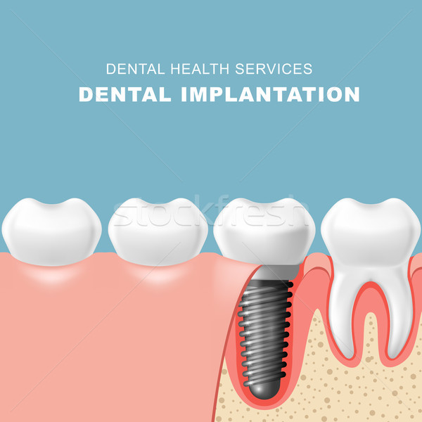 Teeth and dental implantat inserted into gum - tooth implantatio Stock photo © gomixer