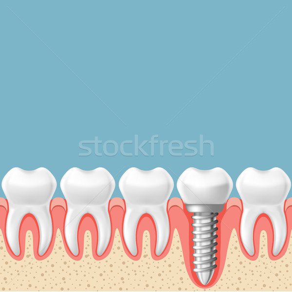 Row of teeth with dental implant - teeth prosthetics scheme, gum Stock photo © gomixer