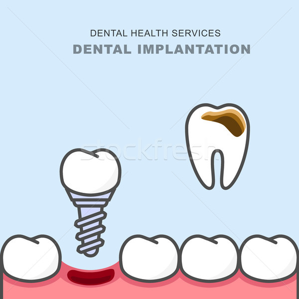 Dental implant instead of carious tooth - teeth prosthetics  Stock photo © gomixer