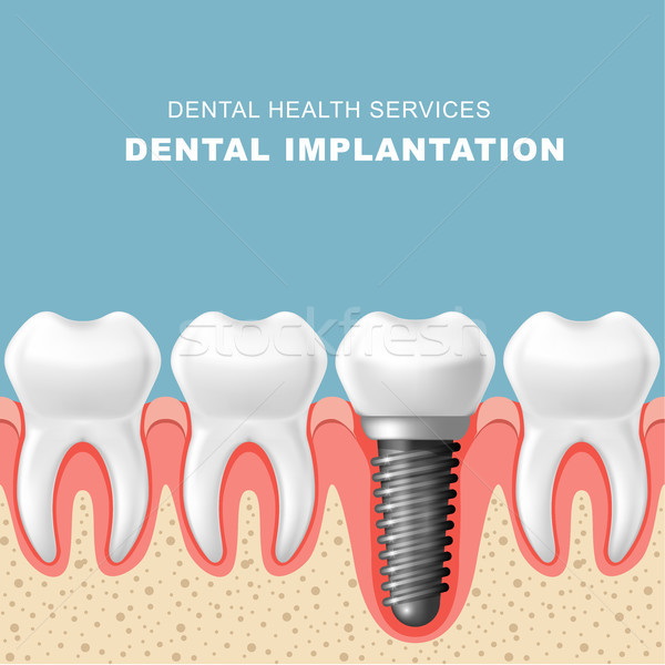 Dental implantation - row of teeth in gum with implant Stock photo © gomixer