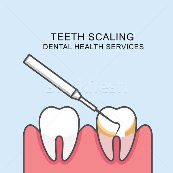 Teeth scaling icon - scaling tooth with periodontal probe Stock photo © gomixer