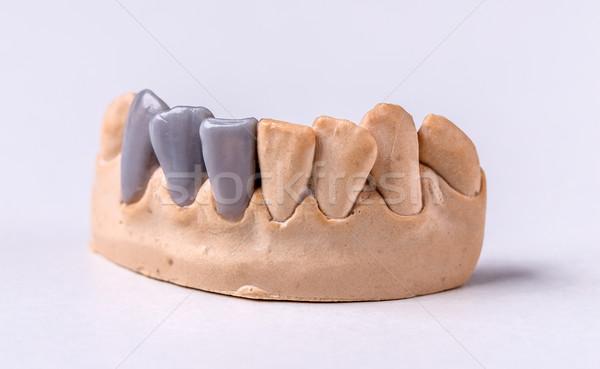 Balmumu diş protez tebeşir model ağız Stok fotoğraf © grafvision