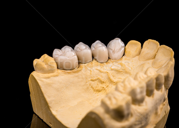 False teeth Stock photo © grafvision