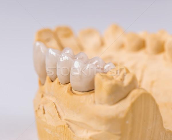 Keramiek gips model witte uitrusting kunstmatig Stockfoto © grafvision