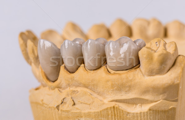 Ceramic dental implants Stock photo © grafvision