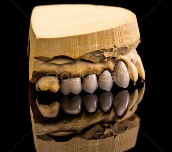 Ceramic dentures Stock photo © grafvision