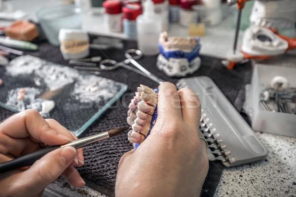 歯科 技術者 適用 セラミックス 歯 作業 ストックフォト © grafvision