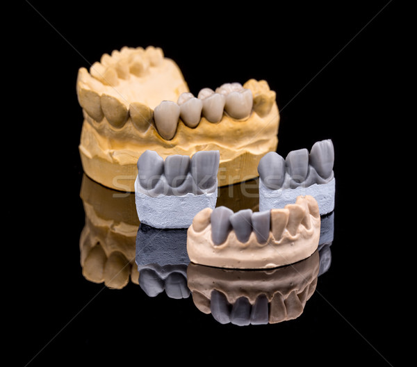 Set of dentures Stock photo © grafvision