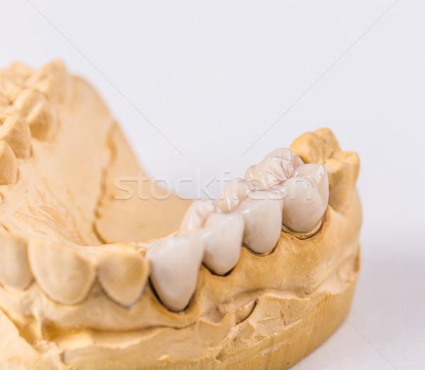 Dentaires prothèse craie modèle bouche dentiste Photo stock © grafvision