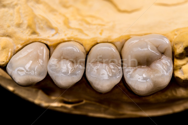 Denture made of ceramics Stock photo © grafvision