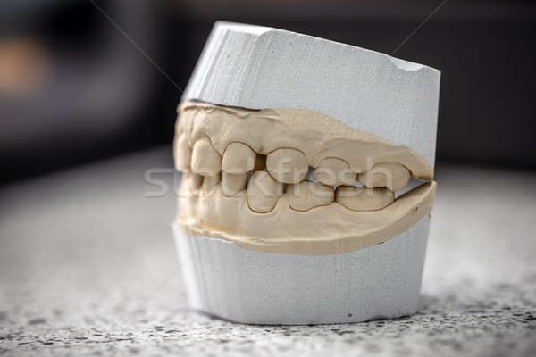 Dental casting gypsum model plaster Stock photo © grafvision