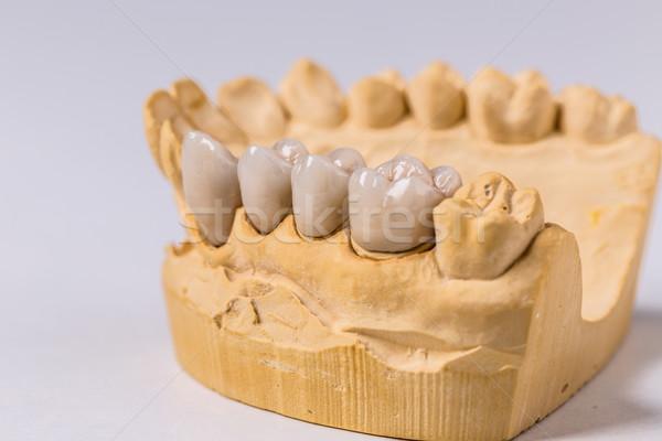 Dentaires prothèse craie modèle blanche équipement Photo stock © grafvision