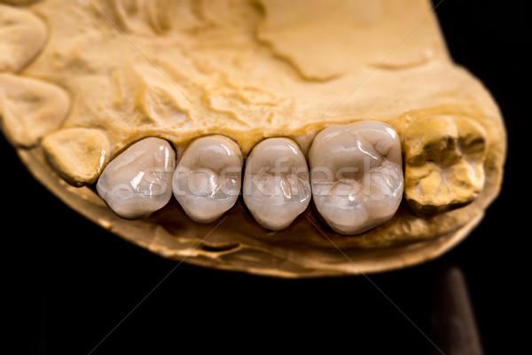 Diş protez tebeşir model siyah yansıma Stok fotoğraf © grafvision