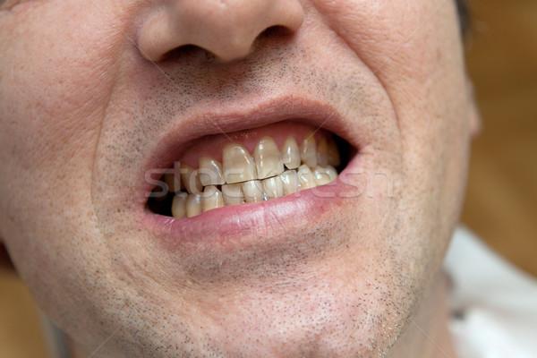 Man Geel tanden tabak gezicht lippen Stockfoto © gsermek