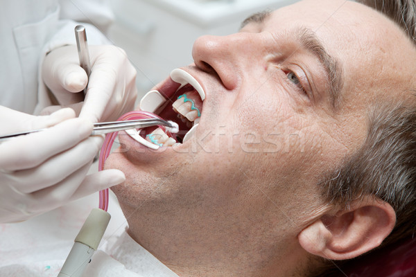 Man during teeth whitening process at the dentist office Stock photo © gsermek