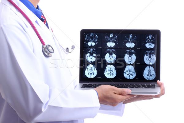 Medico show umani testa Xray Foto d'archivio © hin255