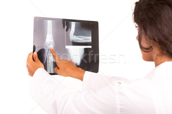 Médico hermosa jóvenes mirando Xray aislado Foto stock © hsfelix