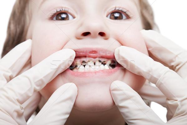 зубов здравоохранения человека пациент открытых Сток-фото © ia_64