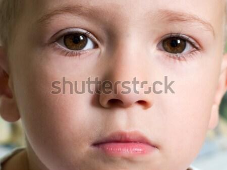 Ferida criança lesão física sangue pele humanismo Foto stock © ia_64