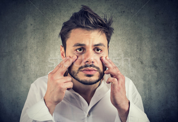 Stock photo: Exhausted man with eye bags looking funny
