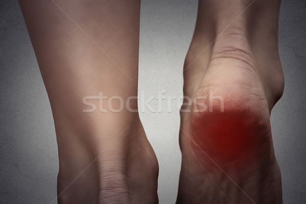 Female foot heel pain colored in red  Stock photo © ichiosea