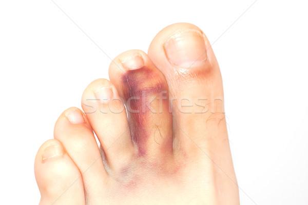 Kırık parmak yalıtılmış beyaz tıbbi kırmızı Stok fotoğraf © igabriela